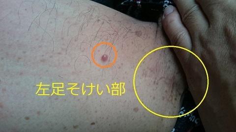 神経線維腫・・左足鼠蹊部.JPG