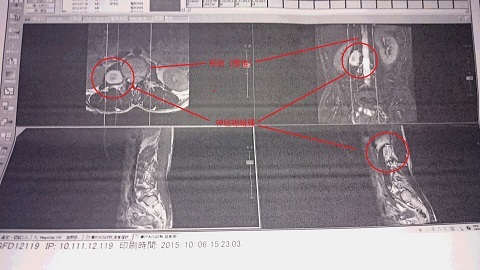 群大病院MRI2015 - コピー 2.JPG