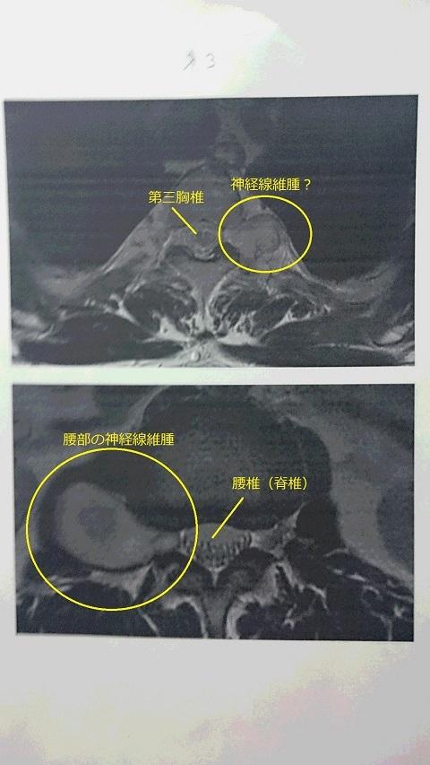 群大病院MRI2016 - コピー - コピー.JPG