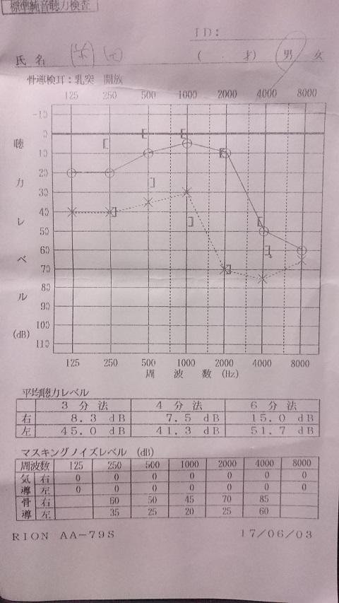 聴力検査2017・06-コピー.JPG