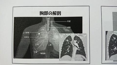 2017・11*手術前1 - コピー.JPG