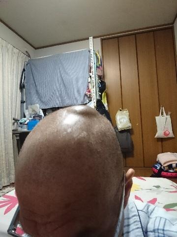 _20180205_210620.JPG